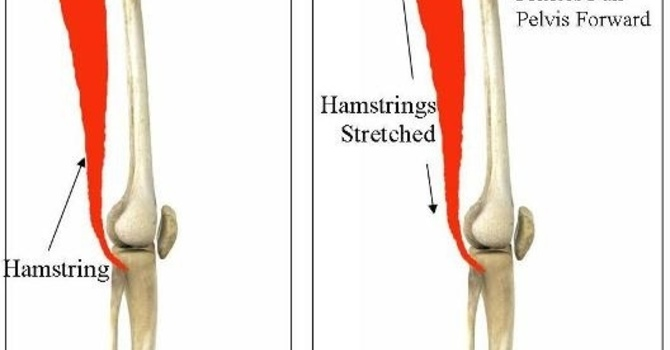 """When Tight Does Not = Stretch: A closer look at hamstring """"tightness"""" image"""