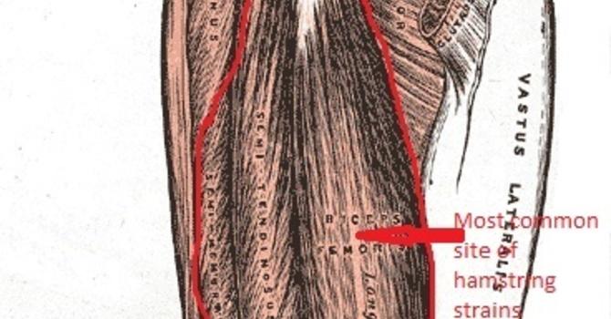 Hamstring Strains image